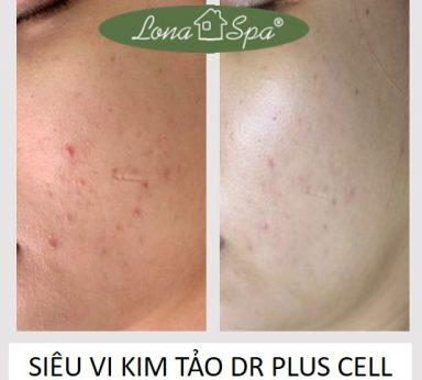 vi-kim-tao-bien-dr-pluscell